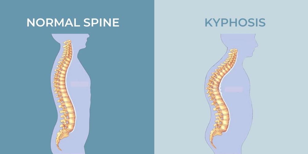 Normal Spine Vs Kyphosis